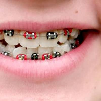 braces dublin
